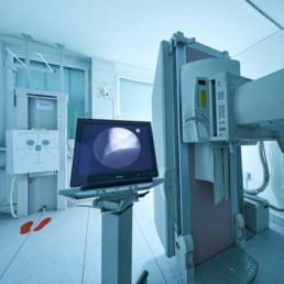 Digitales-Lungenröntgen